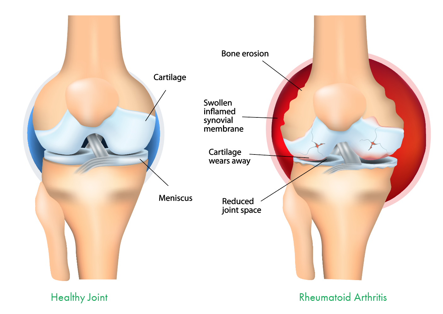 rheumatoid-arthritis-joint-diagram